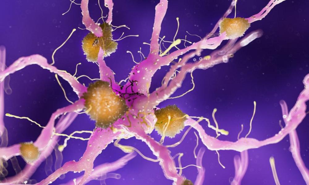 Parliamo di Alzheimer