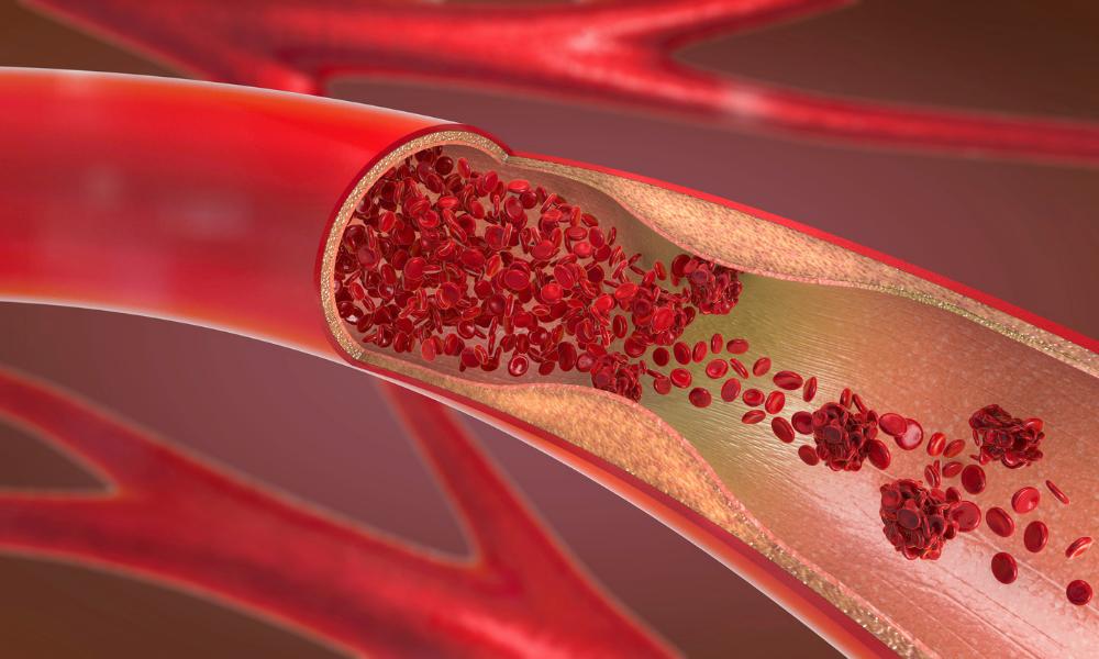 La Trombosi ed i problemi di coagulazione del sangue