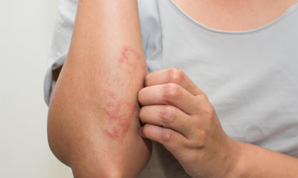 Cos'è la dermatite atopica?