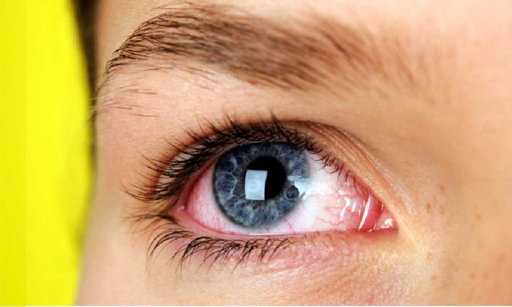 Occhio secco: 15 cause comuni, i rimedi e come curarlo